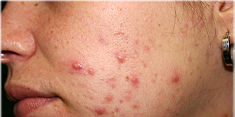 Comment se débarrasser de l'acné rapidement ?