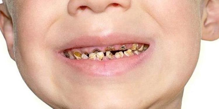 أسباب تآكل أسنان الأطفال