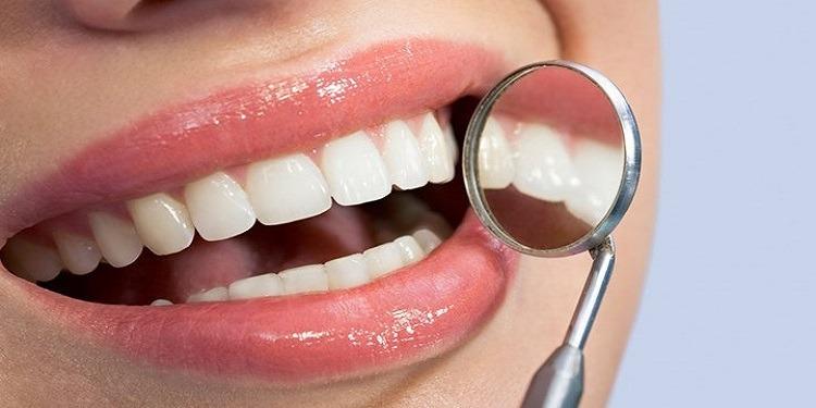 قائمة الأطعمة الـ10 المضرة بالأسنان (صور)