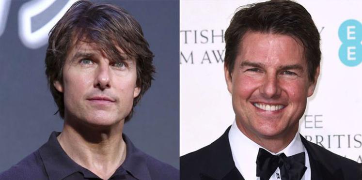 Tom Cruise: qu'a-t-il fait à son visage ?