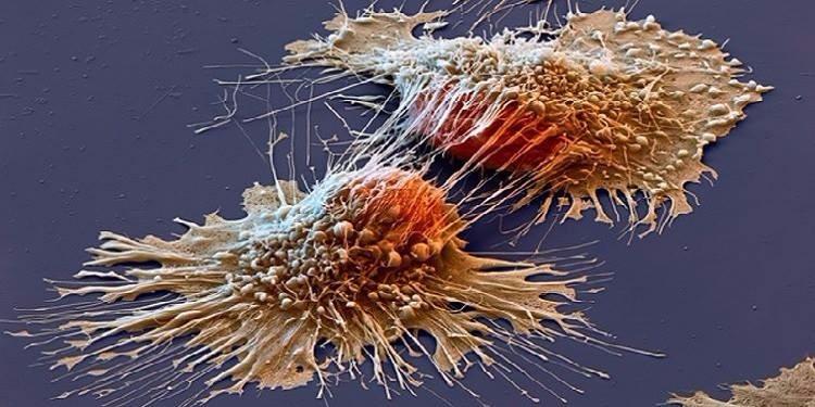 أخصائي في طب الأعشاب يقدم الوصفة السحرية للقضاء على الخلايا السرطانية