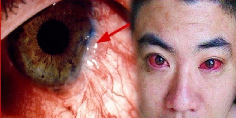 أصيب بسرطان العين...والسبب ما نفعله يوميا قبل النوم!