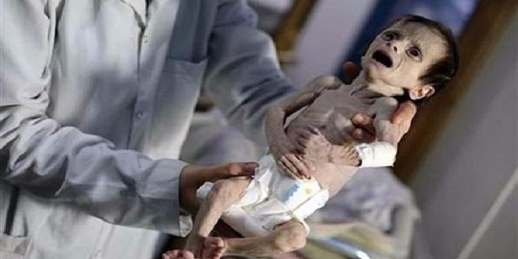 تحاول البكاء لكنها لا تستطيع... وفاة رضيعة سورية بسبب جسمها الهزيل (صور+فيديو)