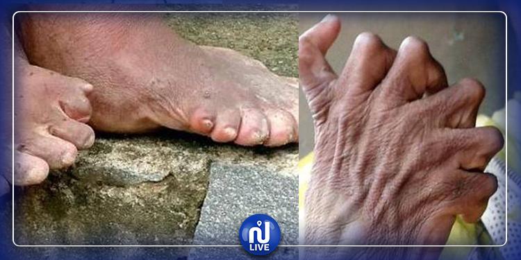 امرأة لديها  12 إصبعا في يديها و 19 في قدميها (صور)