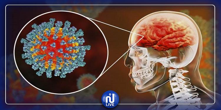 دراسة بريطانية: فيروس كورونا يمكن أن يضر بالمخ