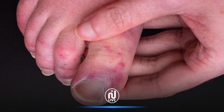 دراسة تكشف أسباب الإصابة بـ''أصابع كوفيد''
