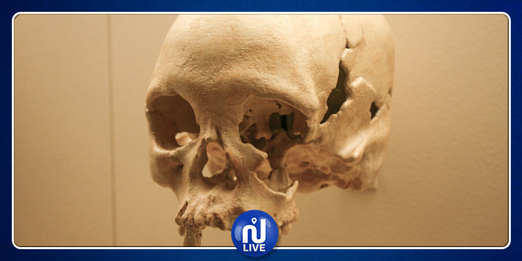 دراسة تحذر من الإصابة بـ ''شوكة الجمجمة''