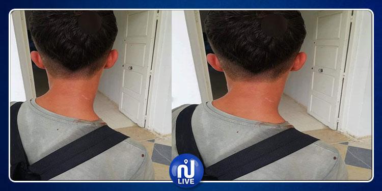 بوحجلة:  تلميذ يتعرض للضرب بآلة حادة على مستوى الرأس