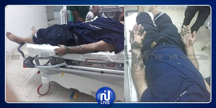 القيروان: إصابة عون حماية بحروق أثناء تدخله لإخماد حريق بمصنع التبغ