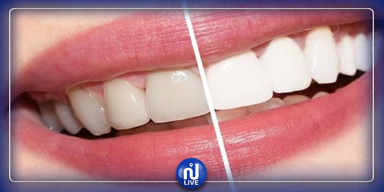 نصائح لتبييض الأسنان والحفاظ على نظافتها