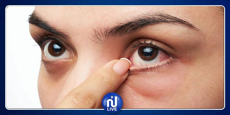 بسبب عملية تجميل: امرأة تعجز عن إغلاق عينيها
