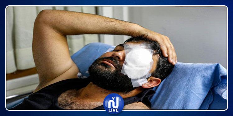 بعد أن خسر عينه: شخصيات فنية تتضامن مع صحفي فلسطيني (صور)