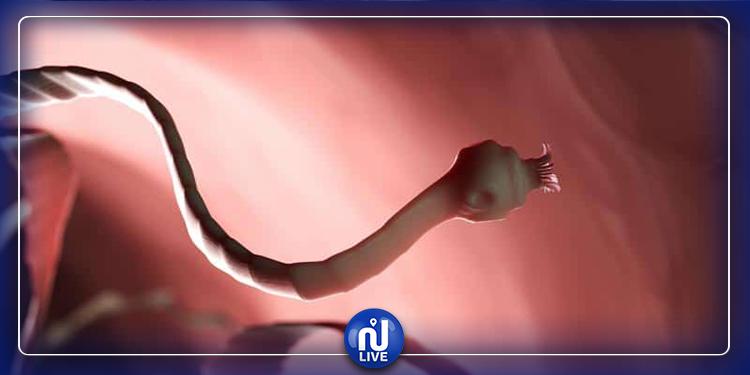 هكذا تكتشف وجود الدودة الشريطية داخل جسمك !