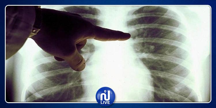 طوق النجاة من مخاطر التدخين وسرطان الرئة