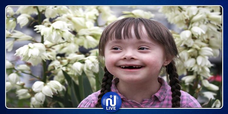 إكتشاف طبي يعيد الأمل للمصابين بمتلازمة ''داون''