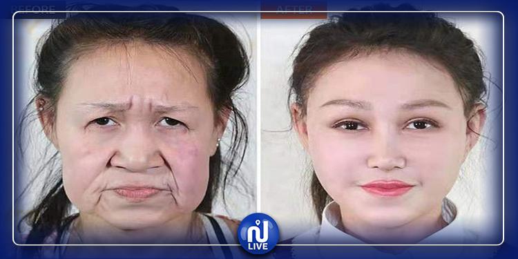 عجوز صينية تسترجع شبابها بعد إصابتها بمرض نادر (صور)