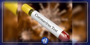 قبلي: نتائج تحاليل سلبية لفيروس كورونا أجريت لـ7 أشخاص