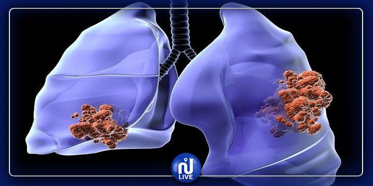أطعمة تقلل خطر الإصابة بسرطان الرئة