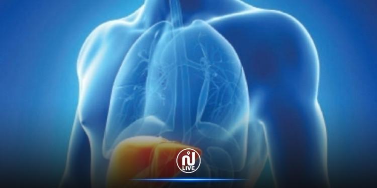 تراجع الإصابات بفيروس التهاب الكبد الفيروسي ''أ''