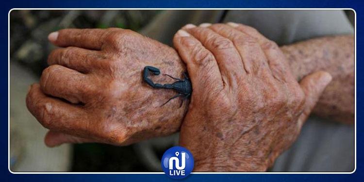 مزارع يستعمل لدغة عقرب كعلاج للألم!