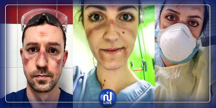 صور صادمة للأطباء في ايطاليا