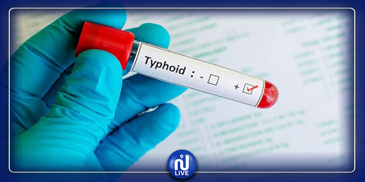 وباء الحمى التيفية يواصل الانتشار في تطاوين