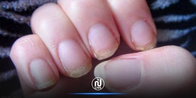 علامات محددة في الأظافر قد تدل على الإصابة بمرض خطير!