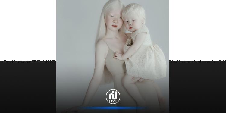 Ces deux sœurs kazakhes albinos brisent tous les stéréotypes