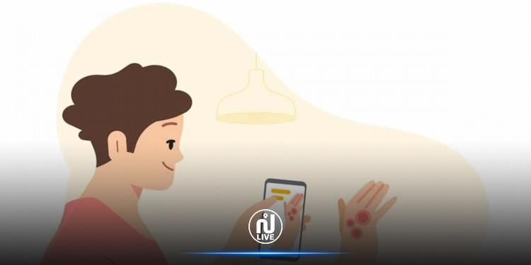 Google lance une application pour détecter les maladies de peau