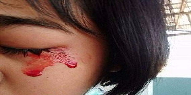 أصيبت بالاكتئاب من حالتها...فتاة تتعرق دمّا! (صور)