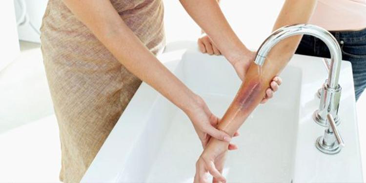 علاج طبيعي لحروق الزيت وتخفيف الألم في المنزل