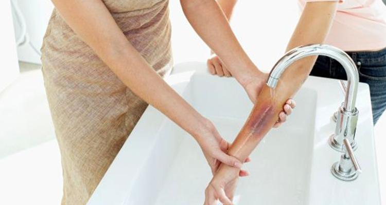 5 remèdes naturels pour soigner une brûlure légère