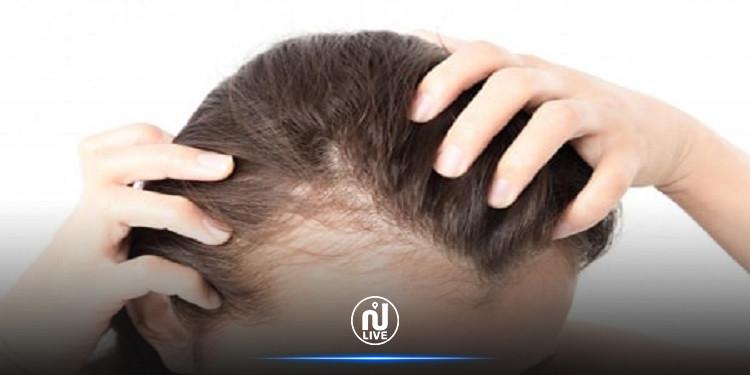 لمن تعافوا من كورونا: تساقط الشعر سببه الوباء
