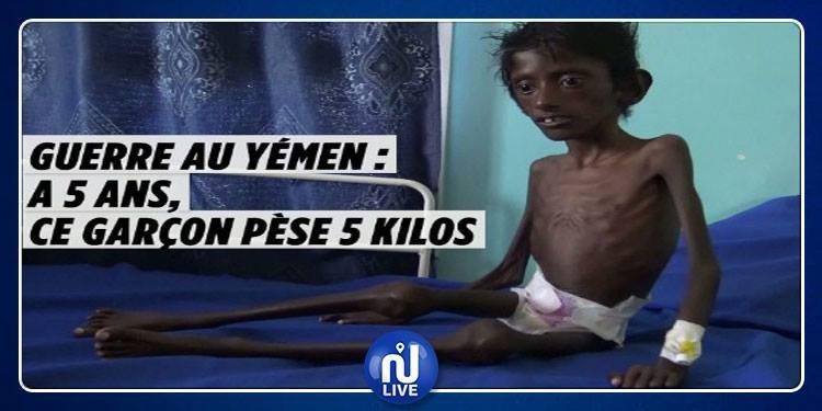 Yémen : Abdel Rahmane, n'a plus que la peau sur ses os (Vidéo)