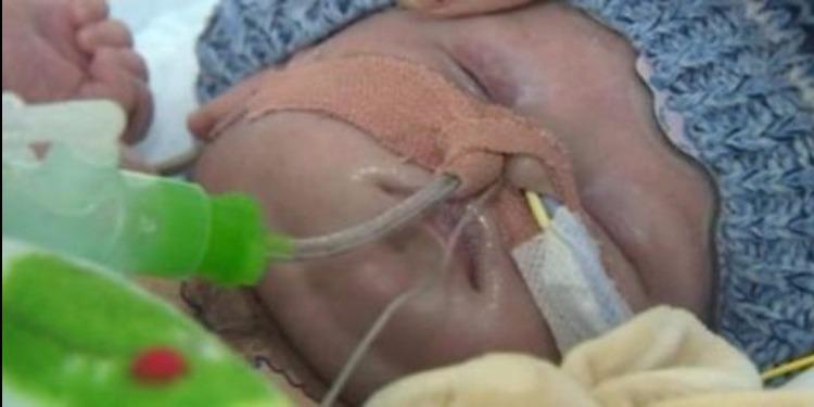 نجاح عملية زراعة قلب لرضيع بريطاني