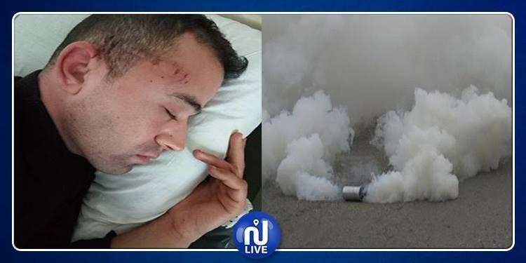 يرقد بالمستشفى العسكري:إصابة عريف أول بعبوة لكريموجان