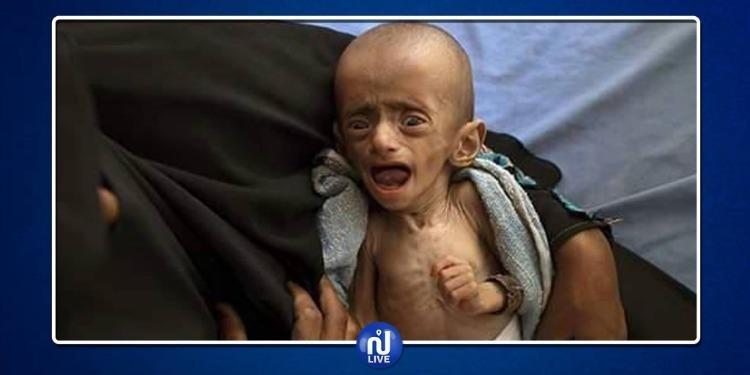 Unicef: Le Yémen, un ''enfer sur terre'' pour les enfants