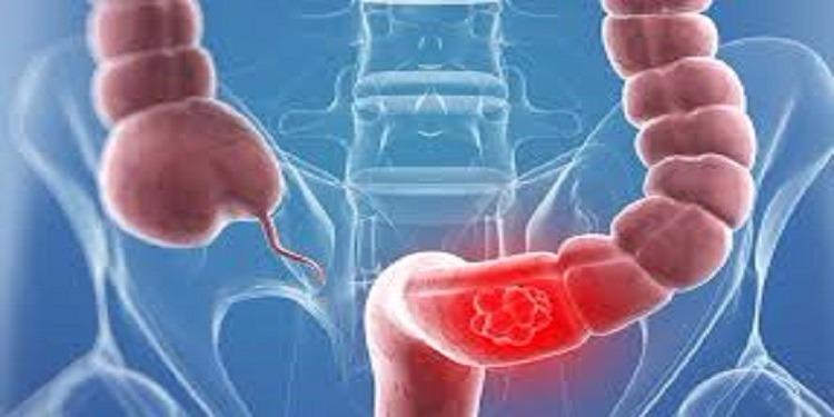 ابتكار علمي حديث  يمكن  من الكشف المبكر عن سرطان القولون