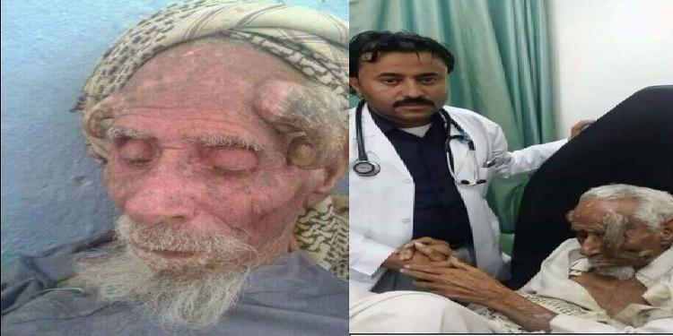 اليمن: وفاة  'ذو القرنين'  عن سن تناهز الـ130 عاما