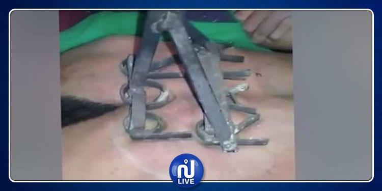 القبض على لص وكيّه على ظهره العاري بآلة حديدية ساخنة (فيديو)