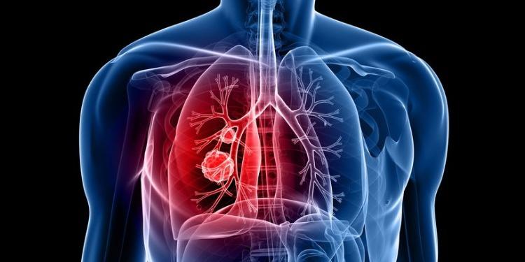 اختبار ''دواء واعد'' يوقف تقدم سرطاني الرئة والثدي
