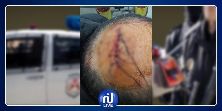 الاعتداء على رئيس فرقة الشرطة البلدية بتونس في مواجهات مع الباعة